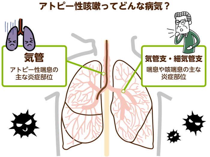 痰 が 絡む 咳 原因