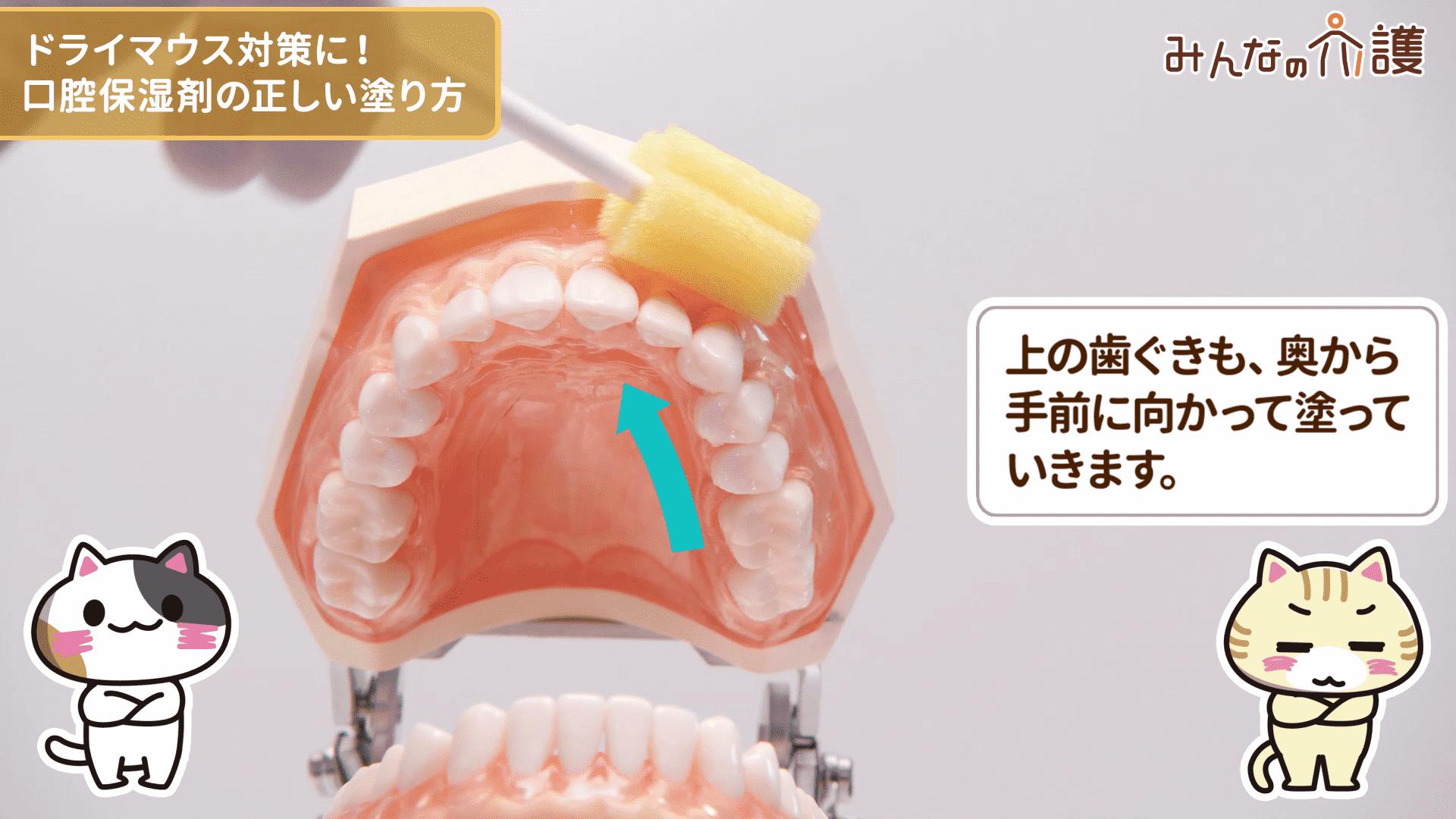 上の歯ぐきに塗る様子
